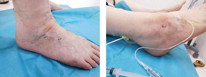 下肢静脈瘤の硬化療法