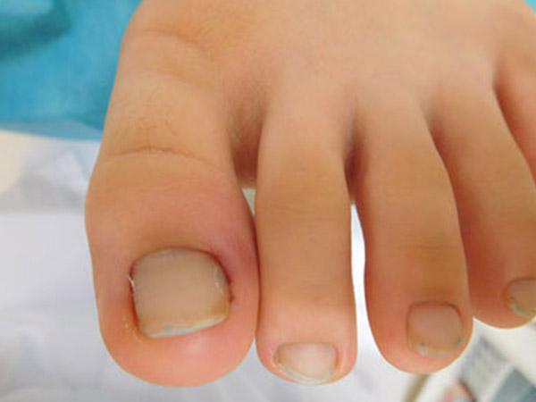 拇趾陥入爪