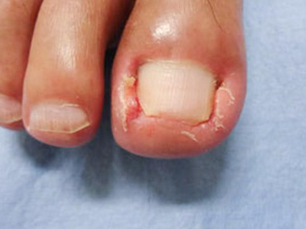 間違った爪の切り方で悪化